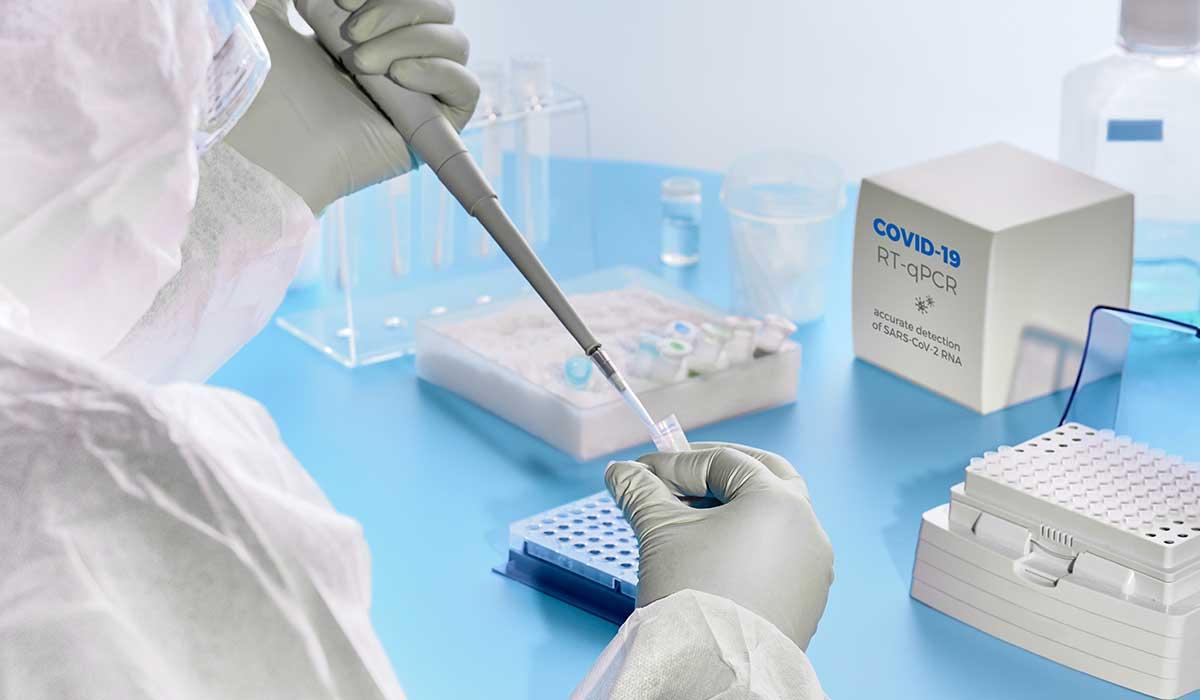 RT-PCR COVID Test